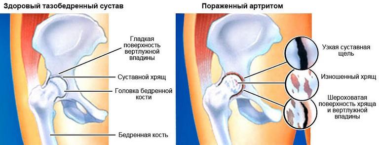 Тазобедренный сустав, поражённый артритом