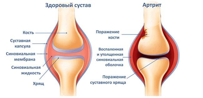 Здоровый сустав и сустав пораженный артритом