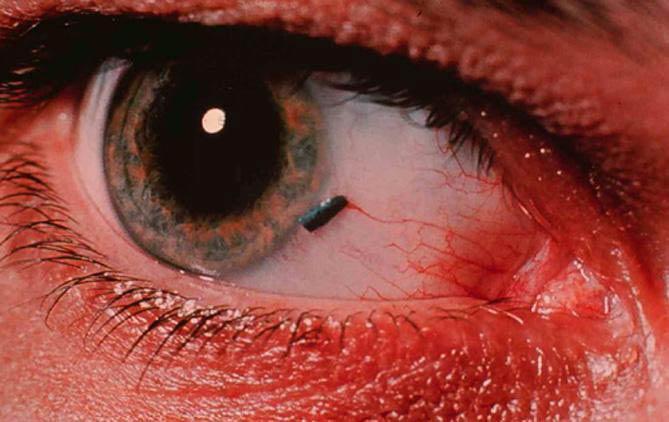 лечение эрозии роговицы глаза