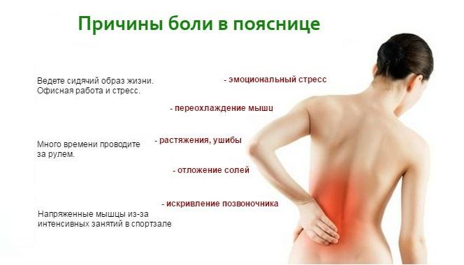 Причины боли в пояснице