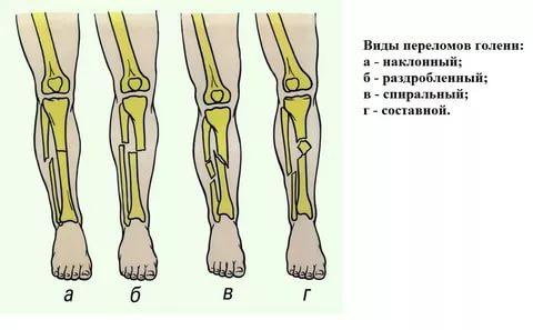 Транспортная иммобилизация при переломе костей голени