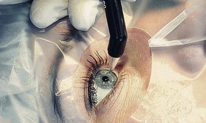 лазерная операция на катаракте