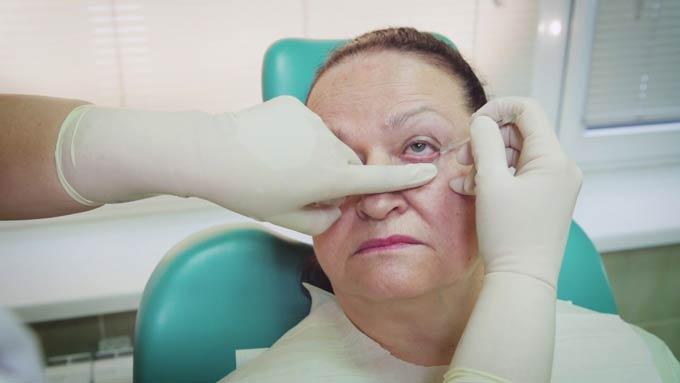 промывание глаз при блефарите