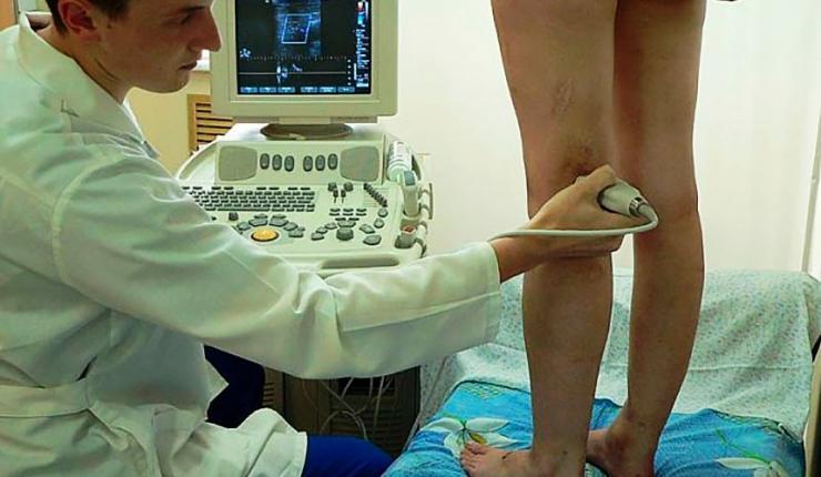 Ультразвуковое ангиосканирование сосудов нижних конечностей