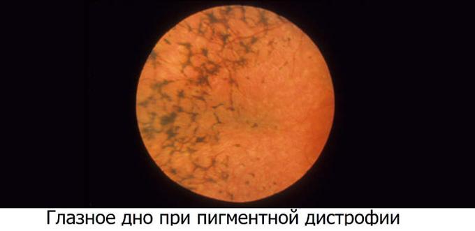 глазное дно