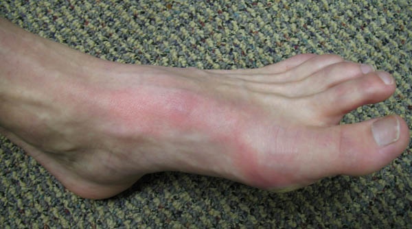 Лечение раны на ноге в домашних условиях