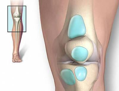 Виды и способы лечения бурсита коленного сустава