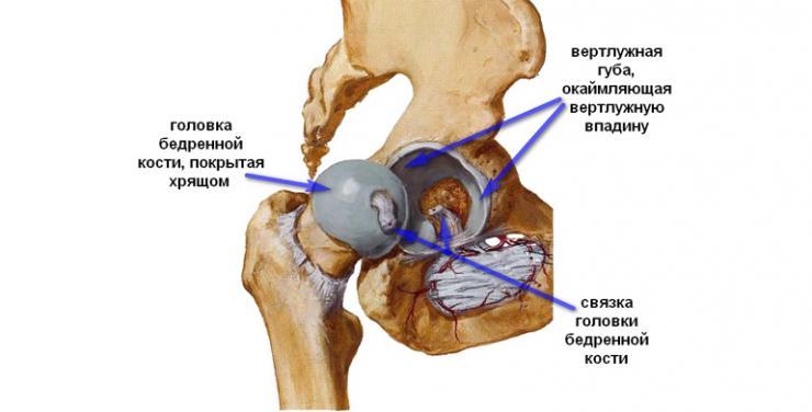 Симптомы и лечение кисты тазобедренного сустава