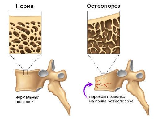 Заболевание костей - остеопороз