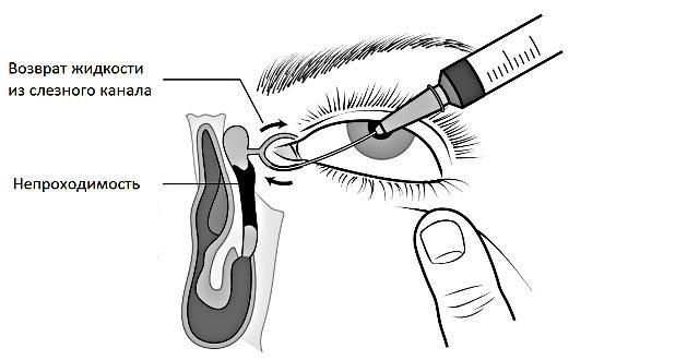 бужирование слезного канала у новорожденных