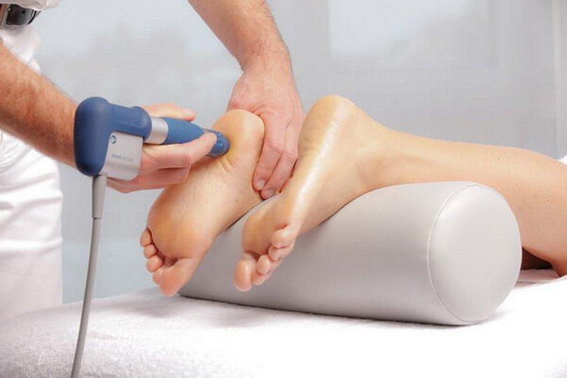Лечение пяточной шпоры УВТ: преимущества процедуры