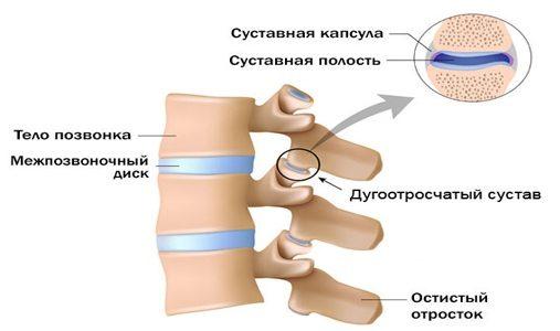 Артроз межпозвонковых суставов