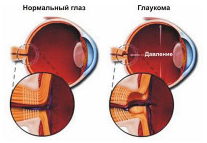 нормальный глаз и глаукома