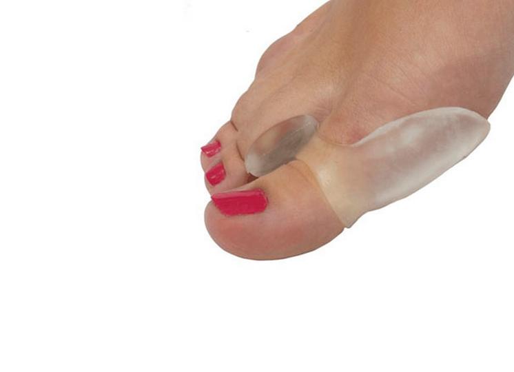 Отличия перелома от ушиба пальца на ноге