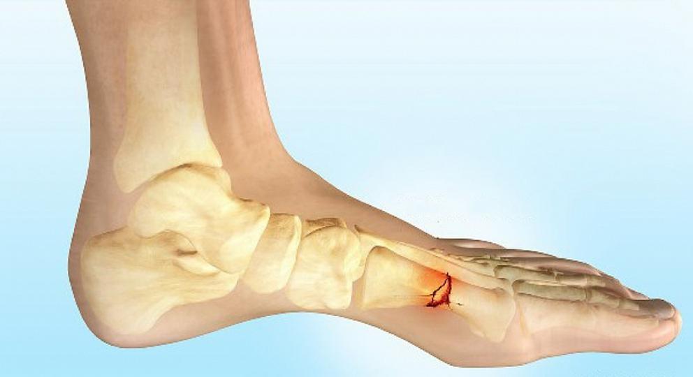 Перелом нижних метаэпифизов костей голени