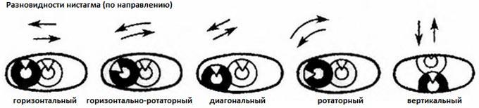 разновидности нистагма