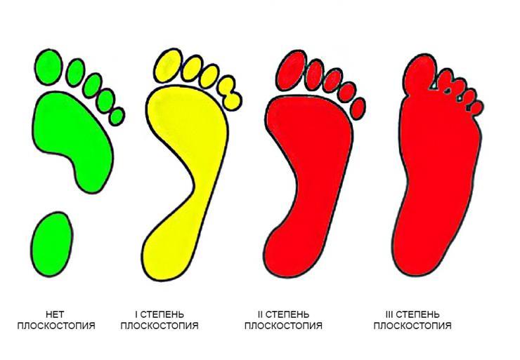 Причины плоскостопия, степени и виды, код по МКБ-10