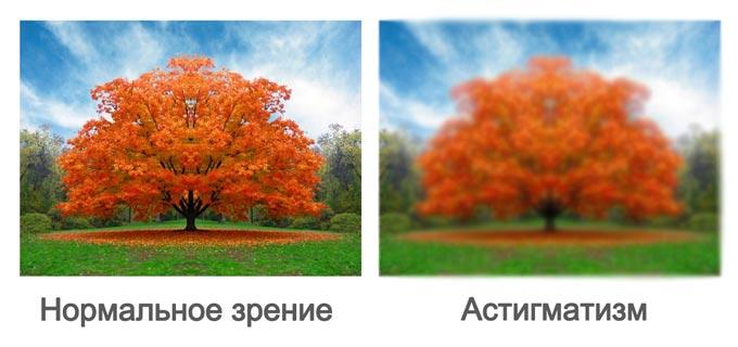 нормальное зрение и при астигматизме