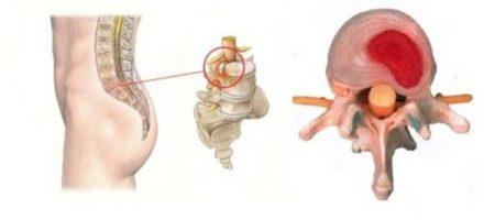 Межпозвоночная грыжа пояснично-крестцового отдела