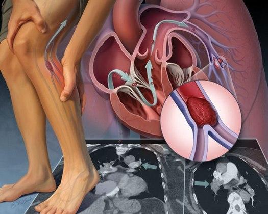 Эмболия подколенной артерии