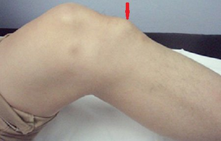 Причины и лечение остеохондропатии