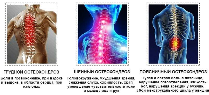 Грудной, шейный и поясничный остеохондроз