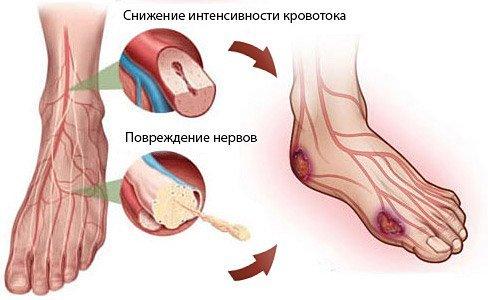 Классификация и причины полинейропатии нижних конечностей