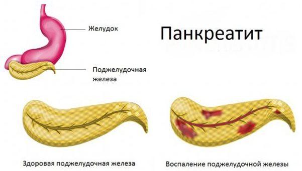 Заболевание панкреатин