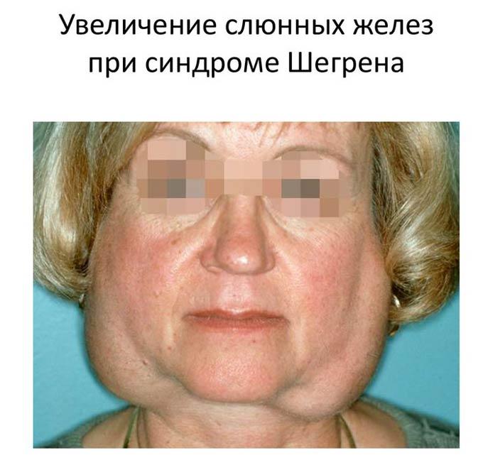 увеличение слюнных желез при синдроме шегрена
