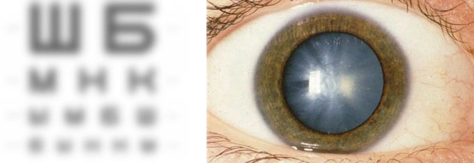 незрелая катаракта обоих глаз