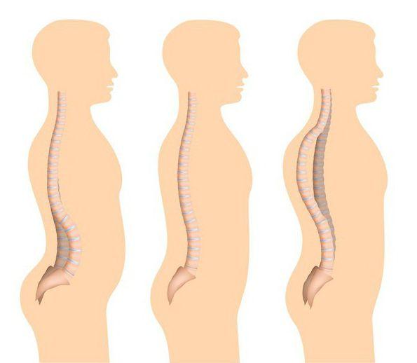 Спондилоэпифизарная дисплазия нижних конечностей