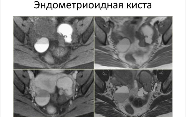 Эндометриоидная киста