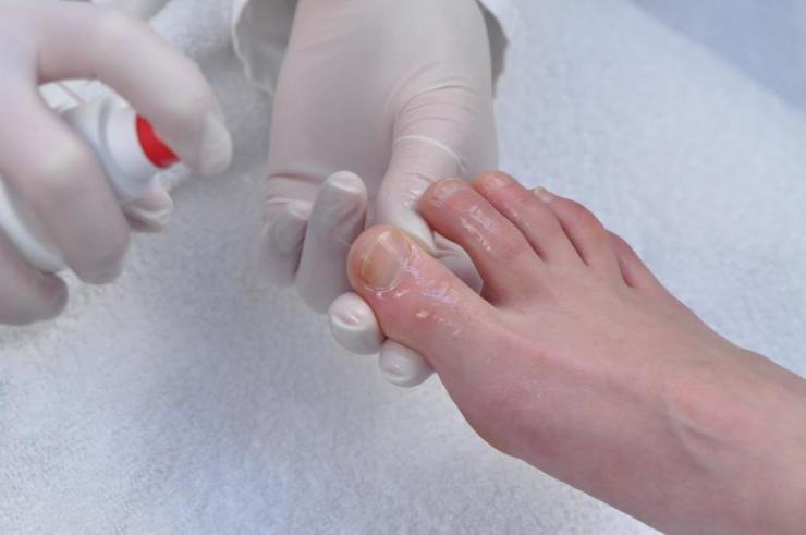 Пути заражения грибком ногтей на ногах