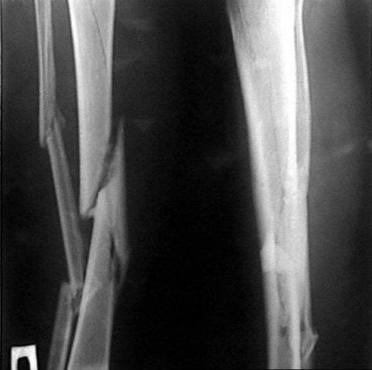 Оскольчатый перелом