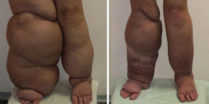 Как лечить лимфедему ног и каковы ее причины?