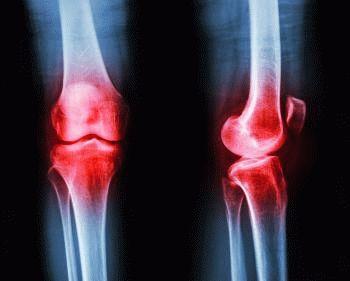 Симптомы артрита и дифференцирование по степени и виду