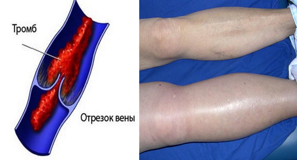 Почему отрывается тромб в вене, признаки и лечение тромбоза