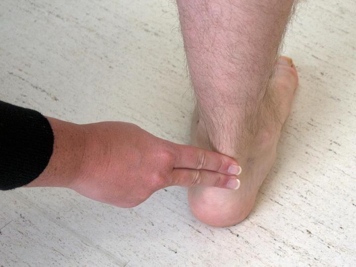 Как лечить воспаление сухожилий и связок стопы и голеностопа?