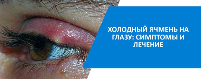 как лечить холодный ячмень на глазу
