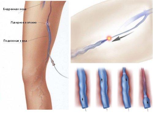 Особенности проведения склеротерапии вен ног