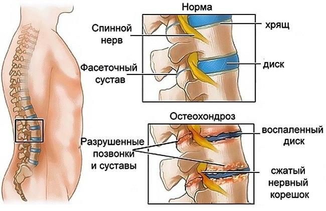 Пояснично-крестцовый остеохондроз