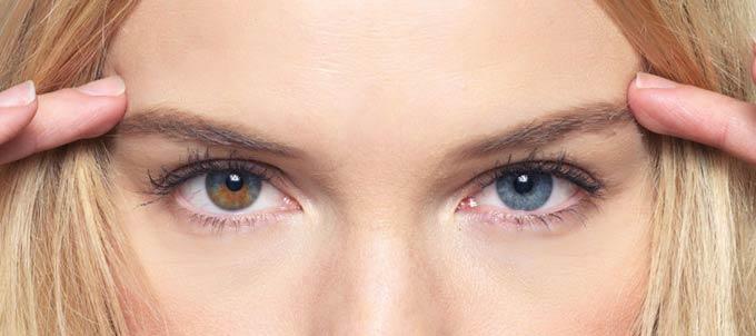 разный цвет глаз у ребенка