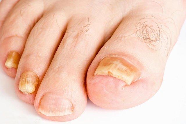 Виды и способы лечения грибка ногтей ног
