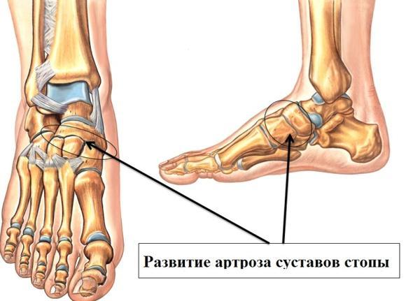 Развитие артроза суставов стопы