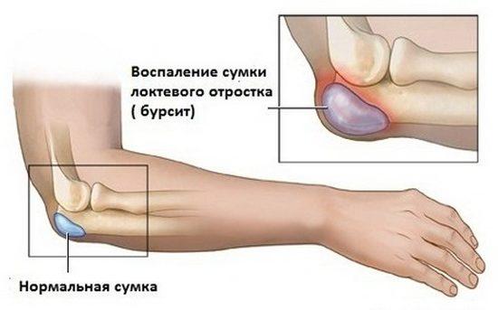 Воспаление локтевого отростка (бурсит)