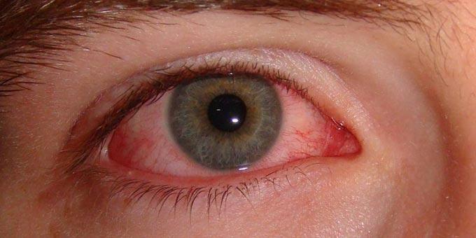 хронический эписклерит