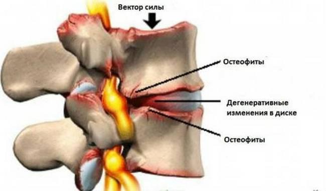 Разрастание остеофитов на позвоночнике