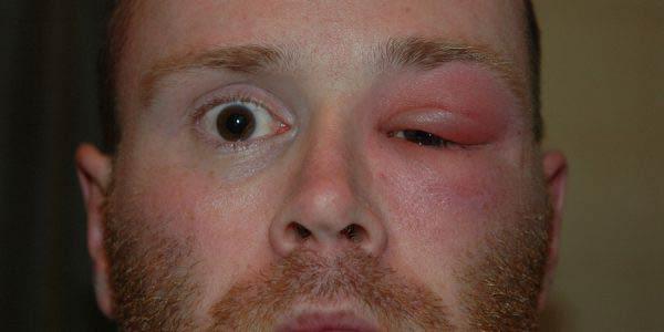 почему опух глаз