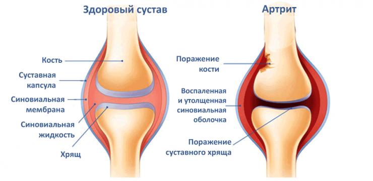 Как лечить артрит коленного сустава народными рецептами