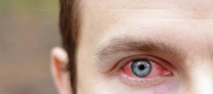 как долго проходит кровоизлияние в глазу